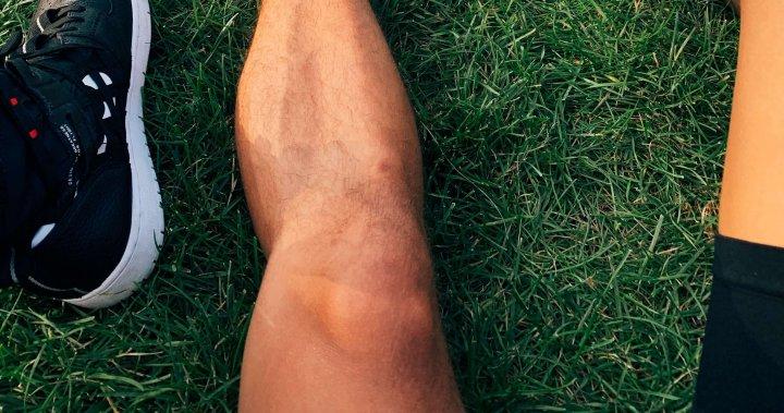 knieproblemen-symptomen